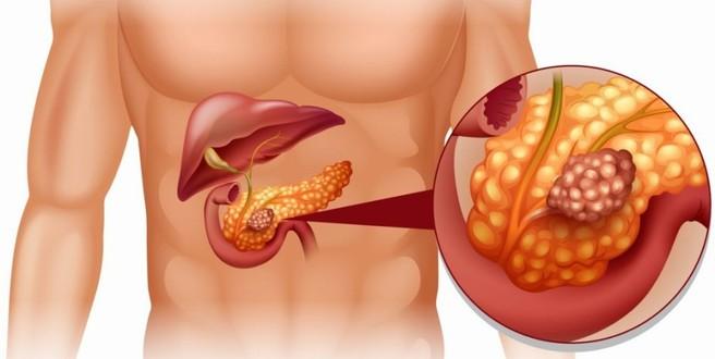Tumore al pancreas: l'importanza della prevenzione